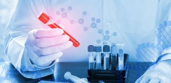 Xét nghiệm máu tổng quát bao lâu có kết quả?